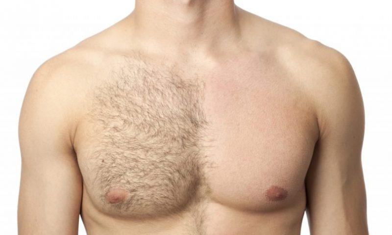 depilacao-peitoral-masculina
