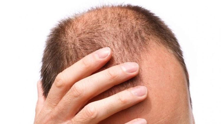 Queda de cabelo masculino