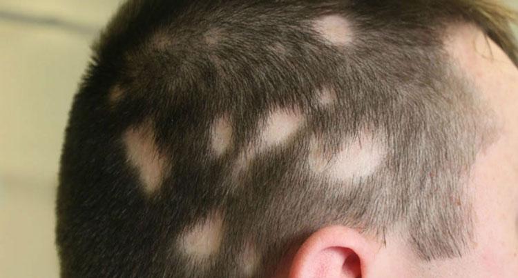 Resultado de imagem para Alopécia