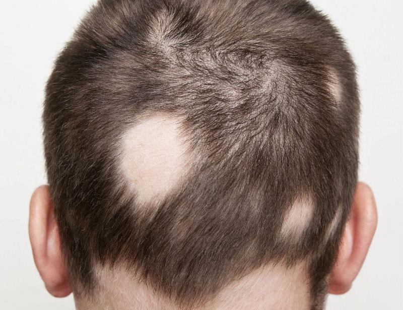 Resultado de imagem para alopecia