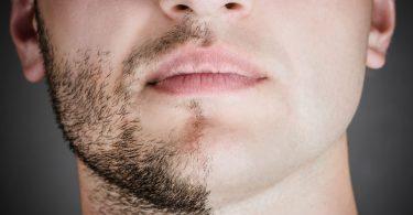 Fazer a barba a laser
